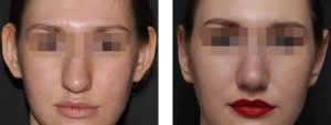 Анастасия 27 лет, фото до и после отопластики