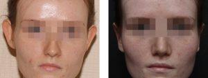 Жанна 24 года, фото до и после пластики ушей