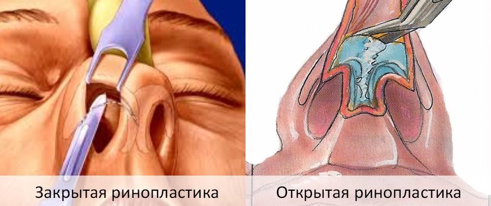 разрезы при закрытой и открытой пластике носа