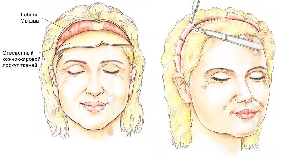 коронарная подтяжка лба, фиксация кожи