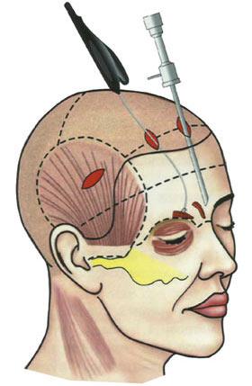 эндоскопическая подтяжка лба и бровей фото