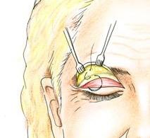 Транспальпебральная фиксация брови фото