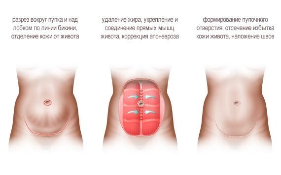 классическая абдоминопластика, инфографика