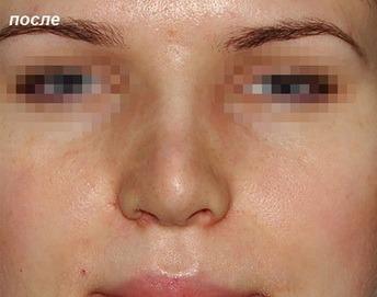 Гиалуроновая кислота для коррекции носа