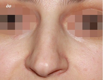 на фото до кривой нос