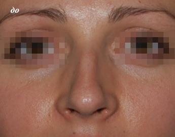 фото опущенного кончика носа
