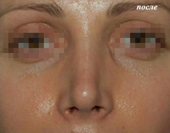 опущенный кончик носа после операции