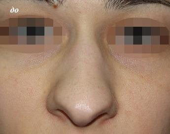 ринопластика фото нос картошкой
