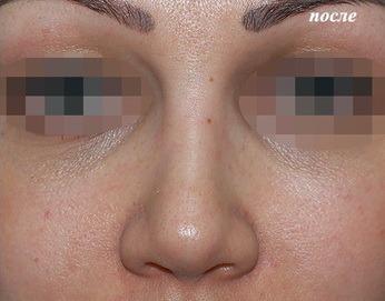 уменьшение кончика носа фото
