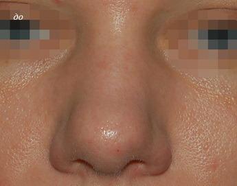 Сколько будет стоить пластика носа