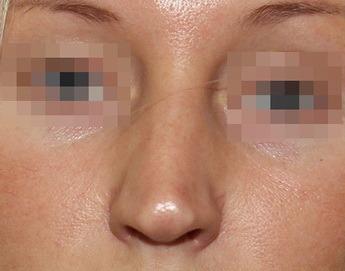 кривой нос до ринопластики