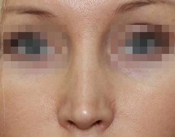 кривой нос после ринопластики