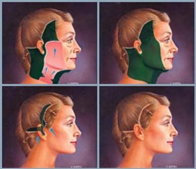 разрезы при круговой подтяжке лица