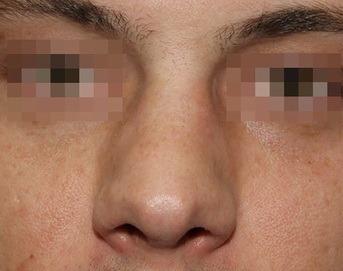 широкая спинка носа у мужчин