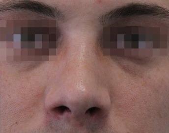широкая спинка носа фото после ринопластики