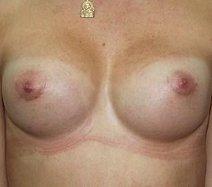 Делать или нет операцию по увеличению груди