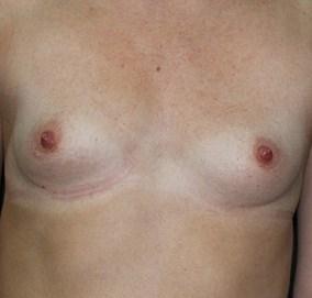 Маленькая девочка с большими грудями