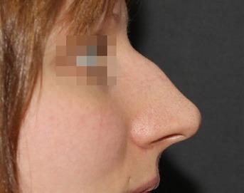 нос с горбинкой фото до ринопластики