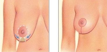 вертикальная подтяжка грудных желез фото