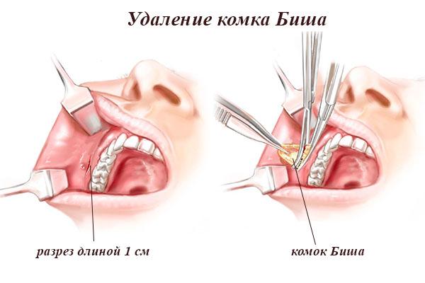 комочки во рту с неприятным запахом лечение
