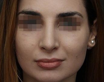 фото носа с широкой спинкой до ринопластики 15 декабря 2015