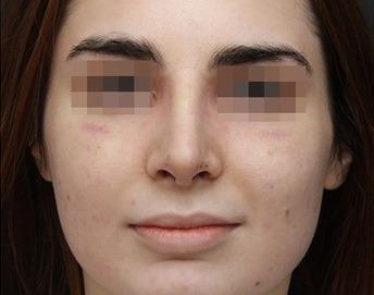 фото носа после ринопластики 15 декабря 2015