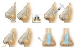 bezoperacionnaia-plastika-nosa