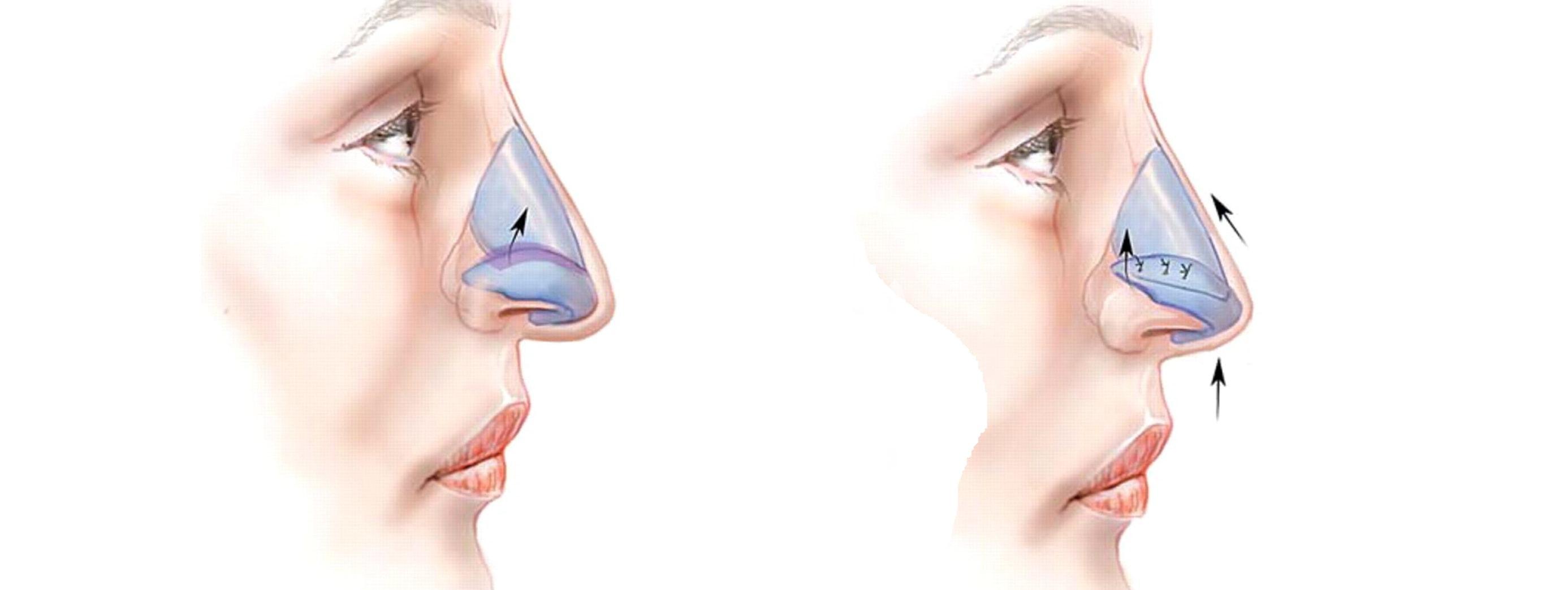 поднятие кончика носа