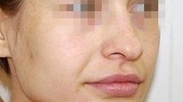 опущенный кончик носа