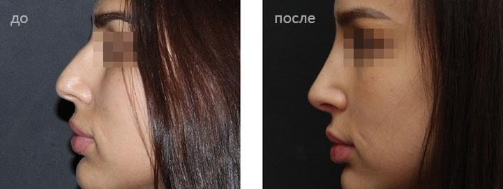 пластики носа до и после фото