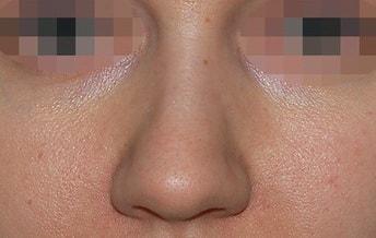 широкий кончик носа