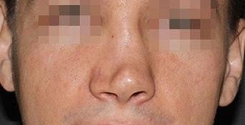 травма носа кончик