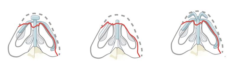 viravnivanie-travmirovannogo-koncika-nosa