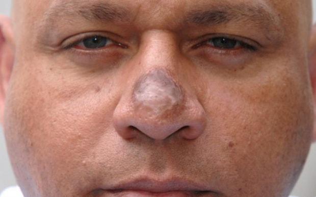 nekroz-tkanei