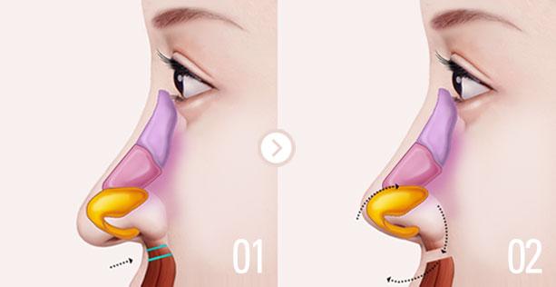 Жесткий нос после ринопластики