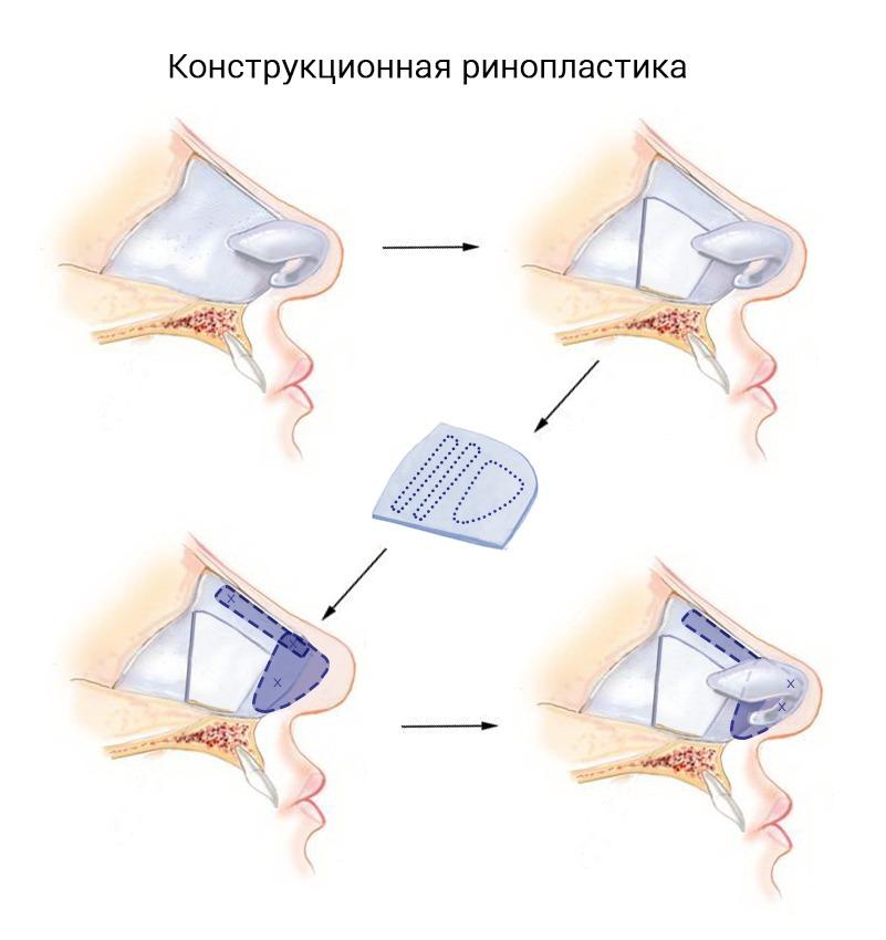 открытая ринопластика - надрез на колумелле