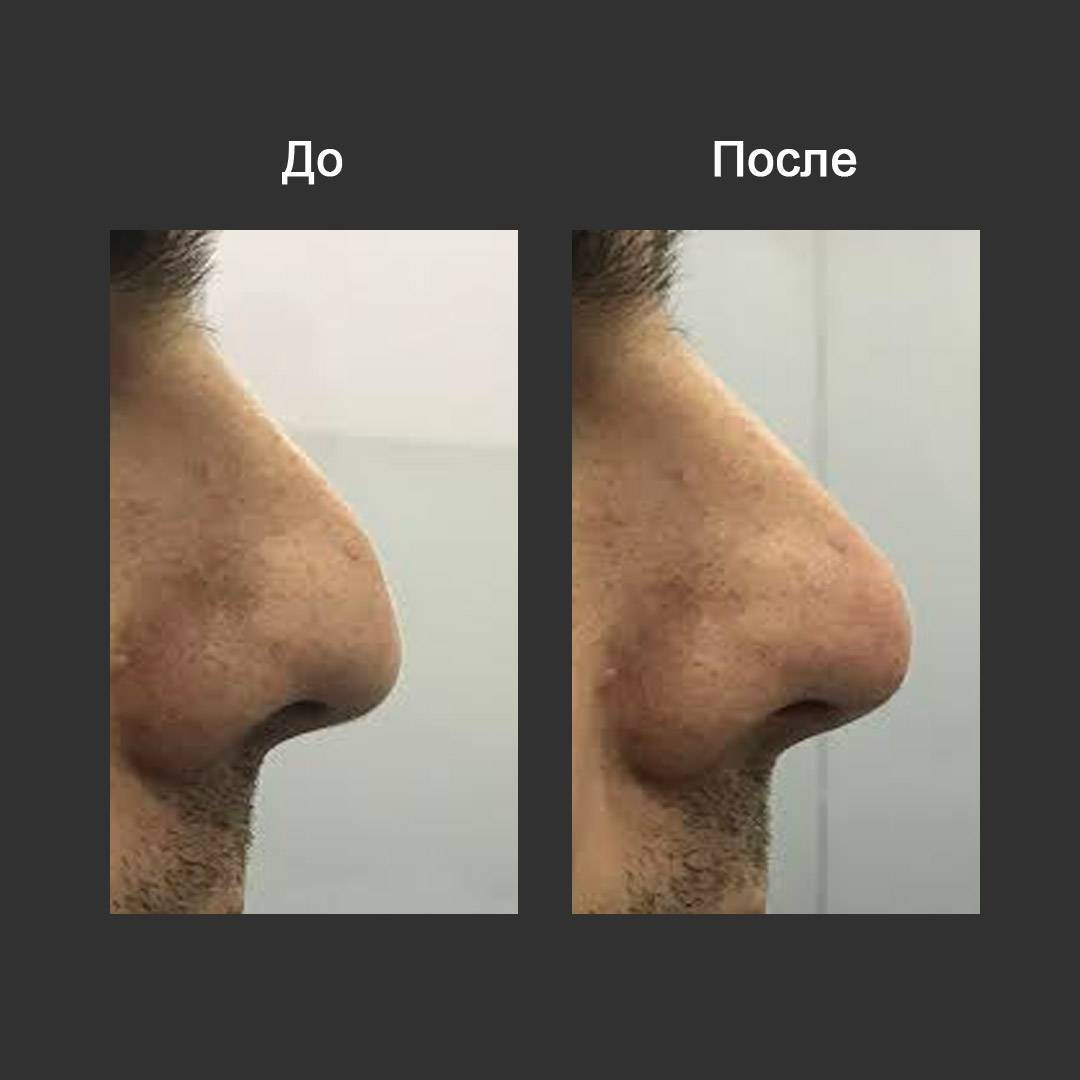Безоперационная коррекция кончика носа