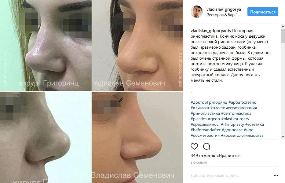 Повторная ринопластика кончика носа