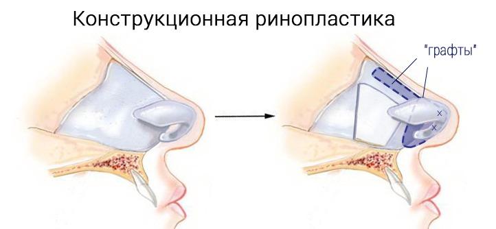 авторская методика коррекции носа