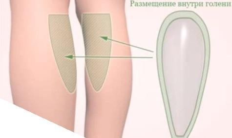 размещение импланта внутри голени