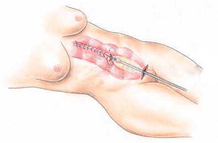 эндоскопическая абдоминопластика, инфографика
