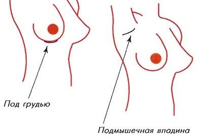 эндоскопическая подтяжка груди фото
