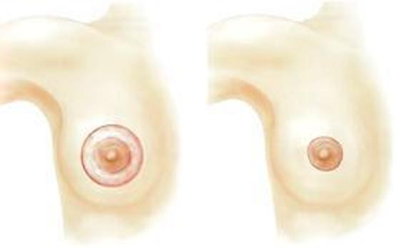 периареолярная подтяжка молочных желез
