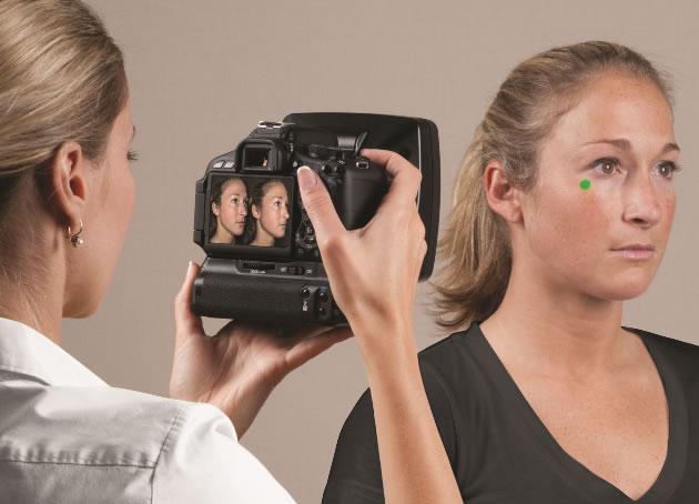 3D моделирование носа перед ринопластикой