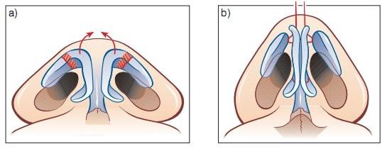 ушивание широкого кончика носа