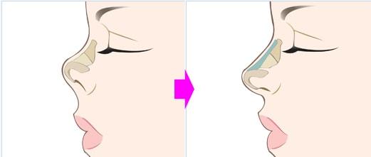 опускается кончик носа