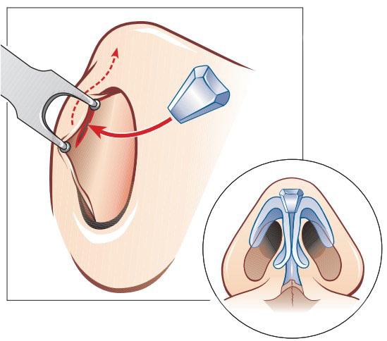 увеличение кончика носа