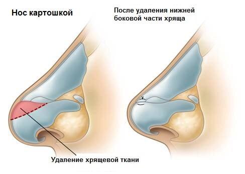 umenishenie-nosa1