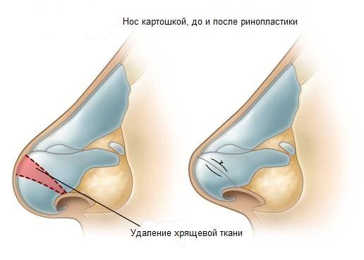 umenishenie-nosa2