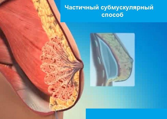 частичный субмускулярный способ уставноки импланта